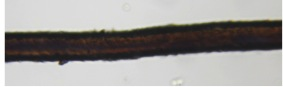 In this image, the medulla is faintly visible as a slightly darker column traveling down the center of the fiber (50x).